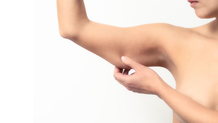 Lipectomie des bras