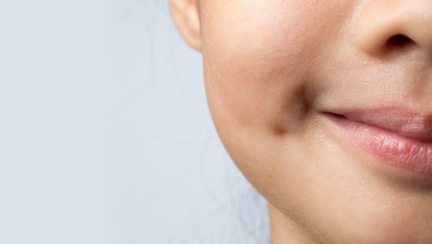 chirurgie des fossettes